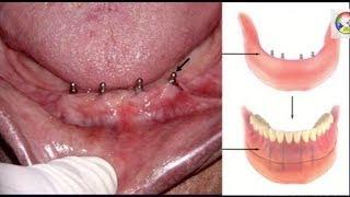 Имплантация Зубов. Что Такое Мини-Импланты? Новый Метод имплантации. Говорит ЭКСПЕРТ