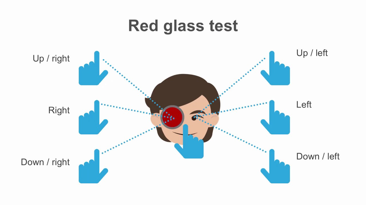 litera testului ocular p tabel de mărire