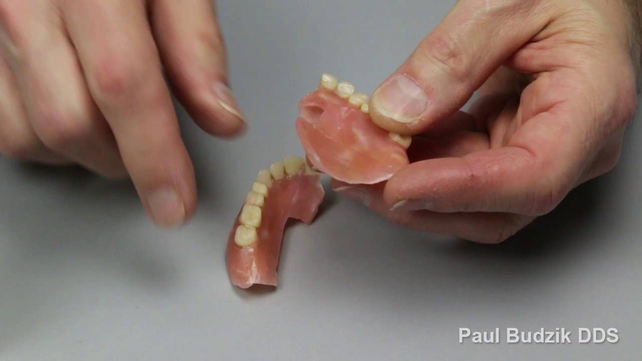 how to make dentures at home