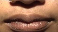 Tips para mapaganda ang inyong lips | Pinoy MD
