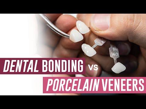 Dental Bonding Vs Porcelain Veneers - Which Should I Get?
