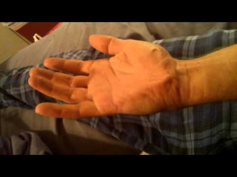 Painful fasciculation. Spasms palm of hand