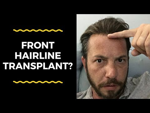 hair-replacement-mens-hair-system-review-front-hairline-transplant?