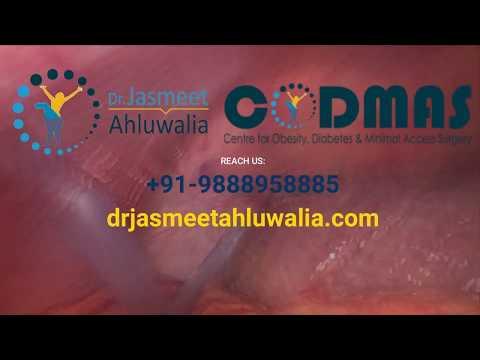 laparoscopic-surgery-in-jalandhar-|-hernia-operation-specialist-doctor-in-punjab,-india