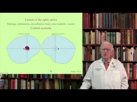 Lecture 5.  The Visual System  III-IV Structure, Function and Dysfunction