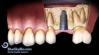 Patient Treatment Videos: Sinus Lift Internal
