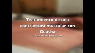 Tratamiento de una contractura con Guasha