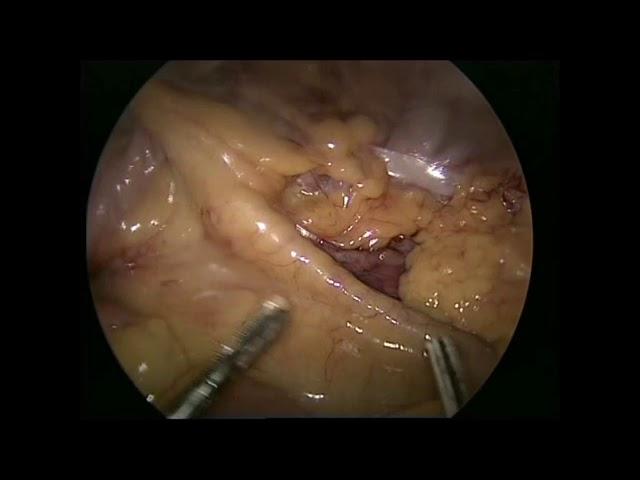 laparoskopik sağ tərəfli hemikolektomiya