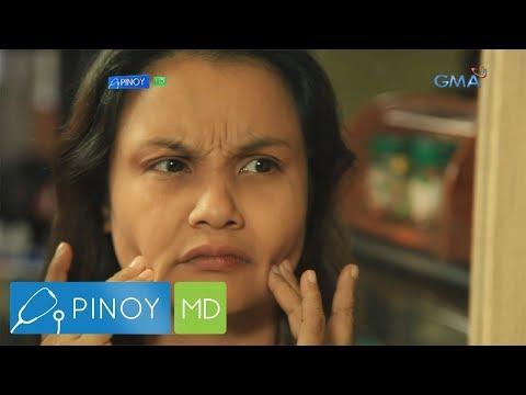 Pinoy MD: Haggard looking wrinkles, paano masosolusyonan?