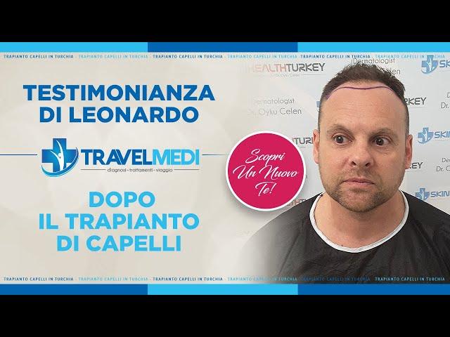 Trapianto Capelli Turchia - Testimonianza di Leonardo
