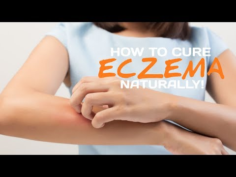 How To Cure Eczema Naturally.