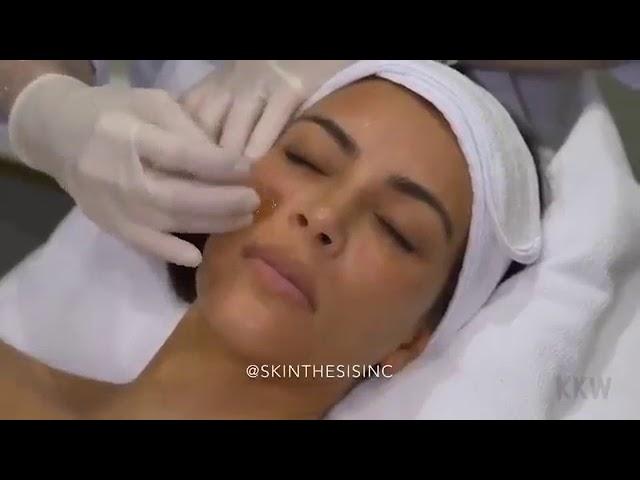 Clinique De Mode | Kim Kardashian | Micro-Tox Aquagold™ Facial
