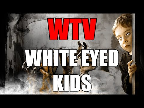 What You Need To Know About The WHITE EYED KIDS