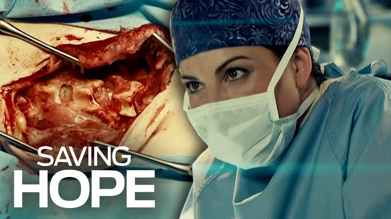 Download Fascinating Surgical Moments | Saving Hope