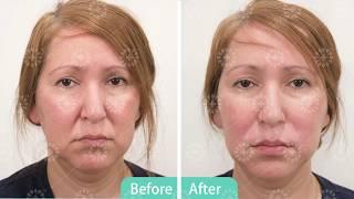 Radiesse Plus/Filler Smile Line Injection
