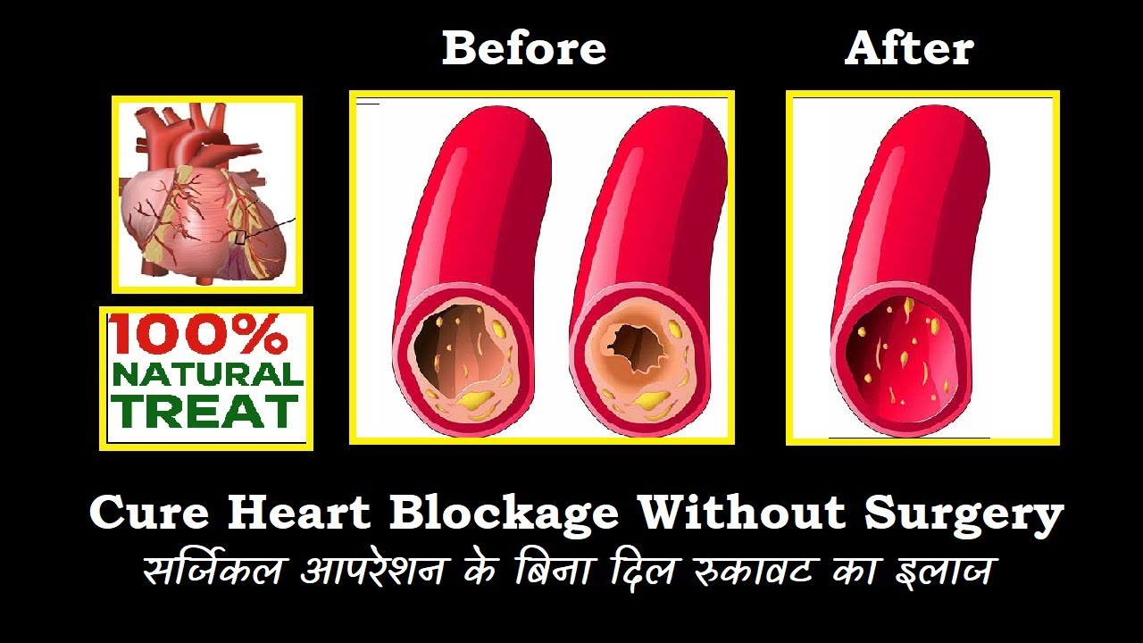 Just 30 Days Clear Clogged Arteries Home Remedy For Heart Blockage