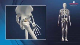 DUAL MOBILITY Concept & Surgical Technique 3D Animation