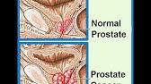 propolis a prostatitisből a népi jogorvoslatokkal Prostatitis görcs