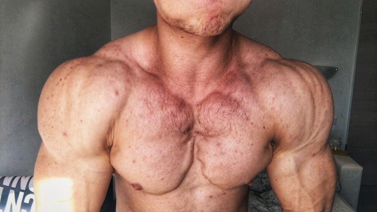 От стероидов простатит массажер простаты лучший видеоурок