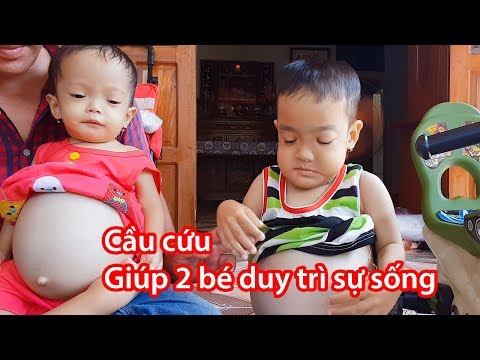 Nhói lòng cảnh 2 em bé bị bệnh xương hóa đá, phải truyền máu hàng tuần để duy trì sự sống.