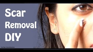 Fade Away Acne Scars  - (CLEAR SKIN!) | by SuperWowStyle Prachi