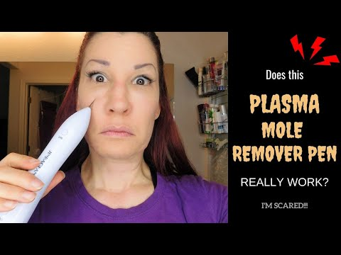 Plasma Mole Remover Pen Review Demo I Does It Really Remove Freckles Skin Tags And Moles Youtube