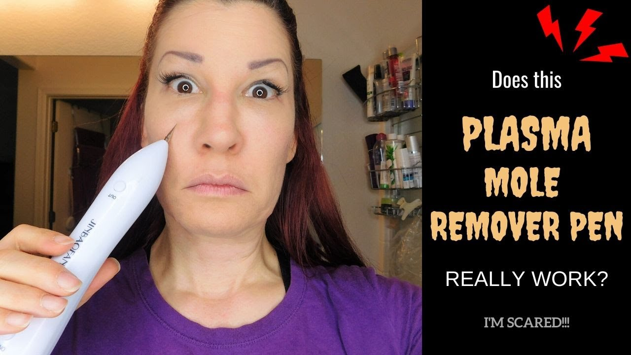 Plasma Mole Remover Pen Review Demo I Does It Really Remove