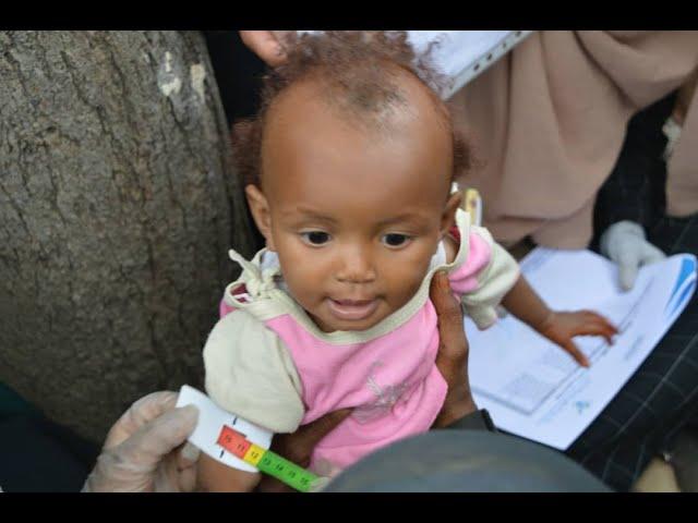 SAVEYEMEN - Yemen Desperately Need Help