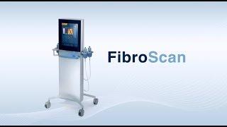 ตรวจประเมินภาวะตับแข็งด้วยเครื่อง FibroScan