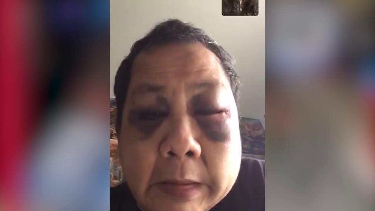 【三藩市】: 又再出現亞裔遭到暴力襲擊 受害者考慮搬離灣區