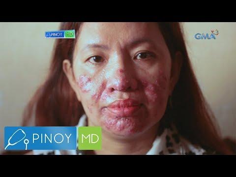 Pinoy MD: Sanhi ng adult acne sa mga babae, tinalakay sa 'Pinoy MD'