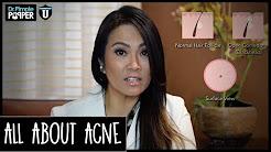 hqdefault - Do Dermatologists Cure Acne