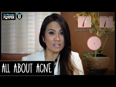 hqdefault - What Do Dermatologist Recommend For Acne