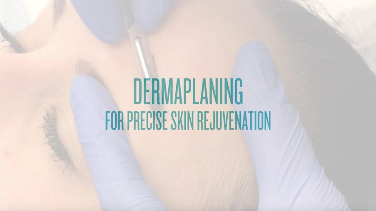 Dermaplaning at Sanova Dermatology