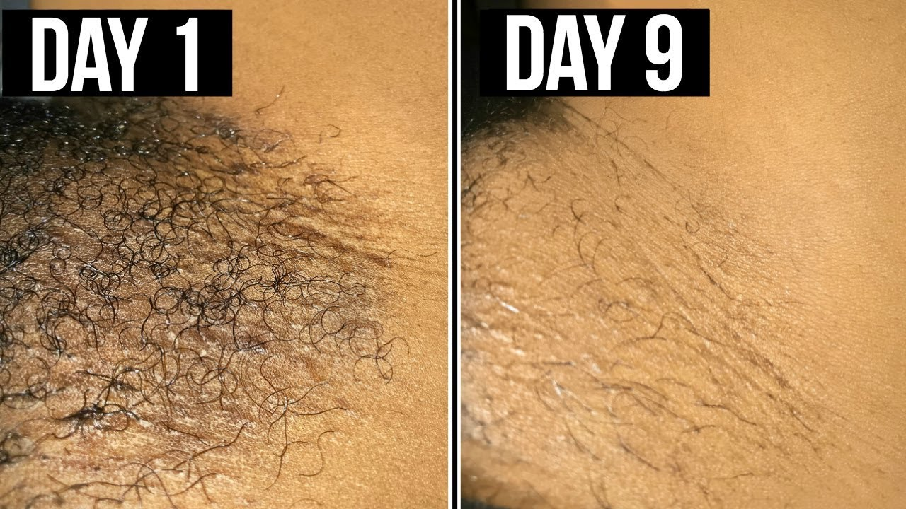 AVEC CETTE LOTION FINI LES POILS INCARNÉS 😱� maillot barbe