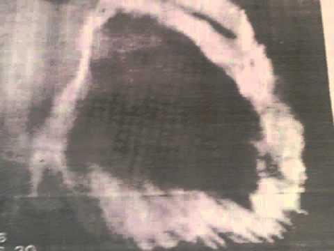 Fernand Rembou - Jéhovah