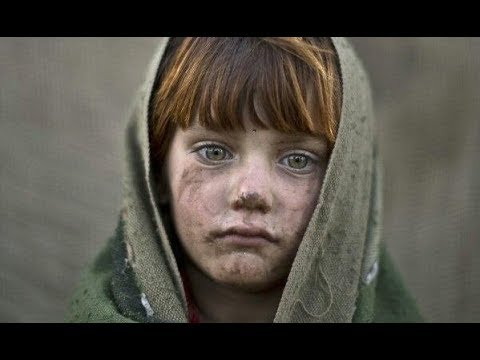 I am Afghanistan | Before and after War