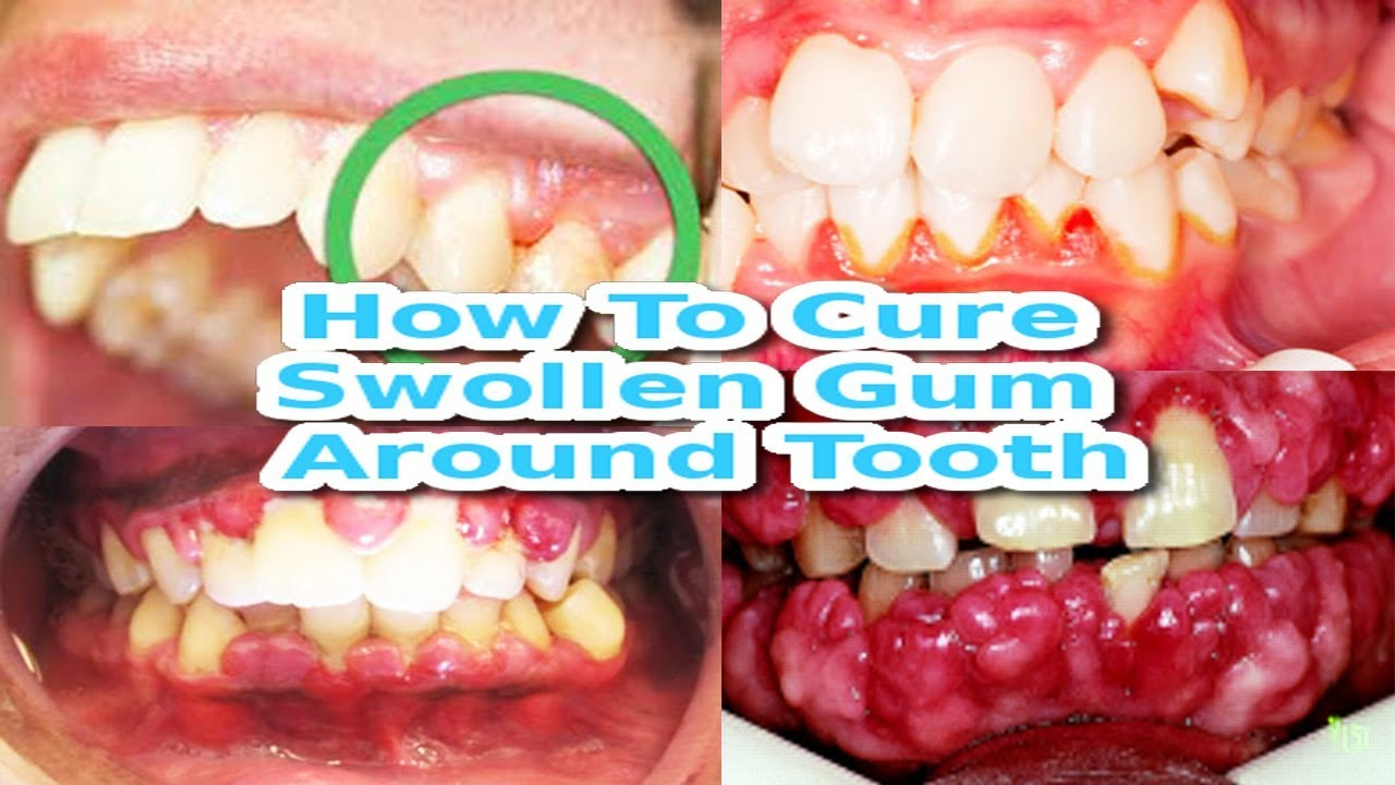 Gums hurt - what to do at home Causes and treatment of gum disease 5