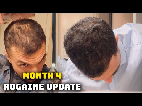 4-month-rogaine-update-(minoxidil)---is-my-hair-coming-back!?