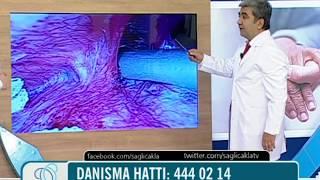 Karaciğer hidatik kistleri laparoskopik olarak yapılabiliyor mu, ameliyat videosu