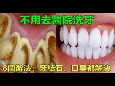 牙垢太多很難清理?教你「8個小竅門」,不用找牙醫,口臭、結石、大黃牙一次都解決!