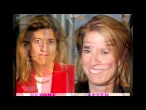 greta van plastic surgery before and after photos