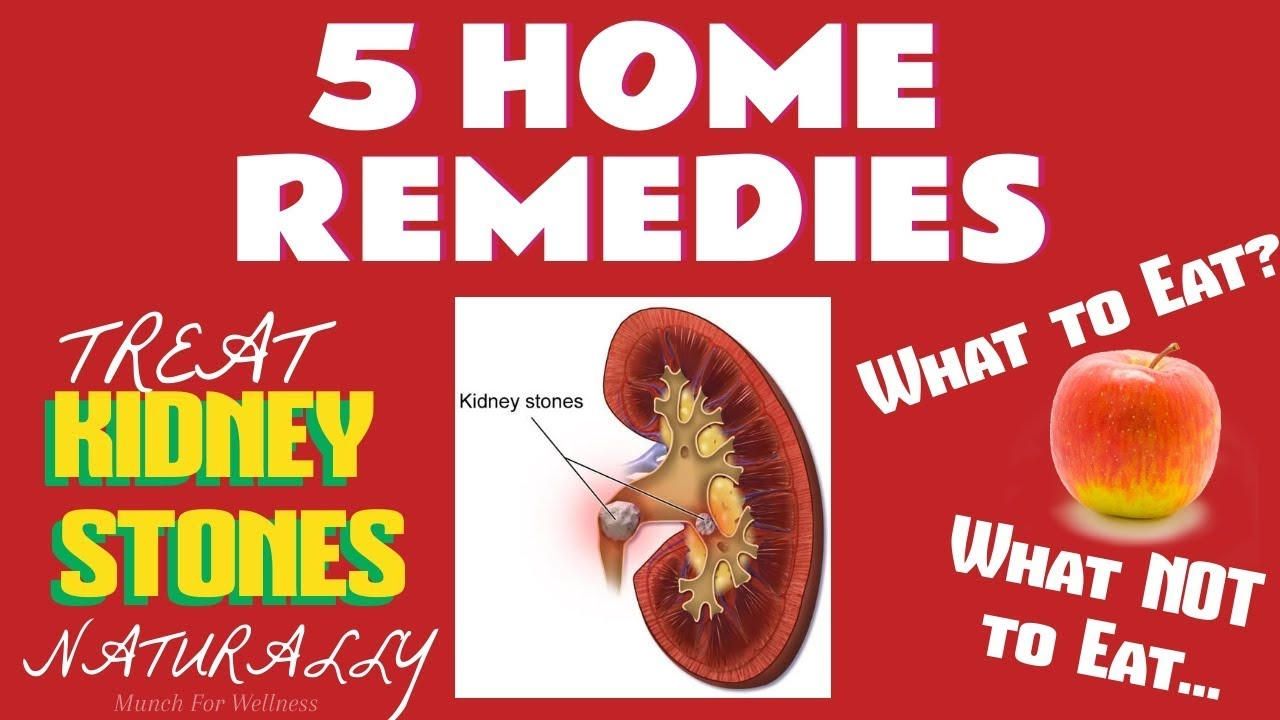 5 Natural Kidney Stone Foods At Home Treatments Remedies Youtube