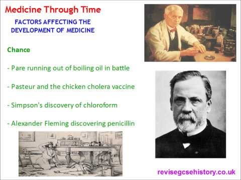 Factors Affecting the Development of Medicine Through Time - GCSE History Revision