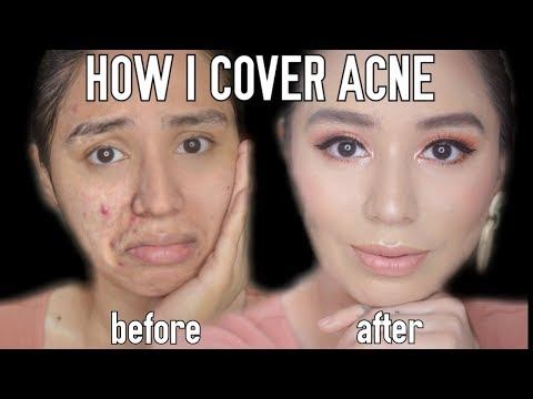 cover-acne-&-scars-using-simple-&-affordable-products!
