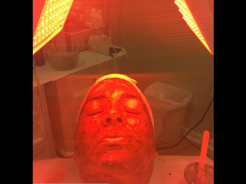 Is Ozone Therapy Skincare Suitable to Use on Black / Dark Skin