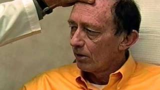 Extreme Makover - Los Angeles Plastic Surgeon Performs Plastic Surgery on Male Patient Thumbnail