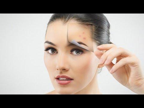 hqdefault - What Causes Painful Blind Pimples
