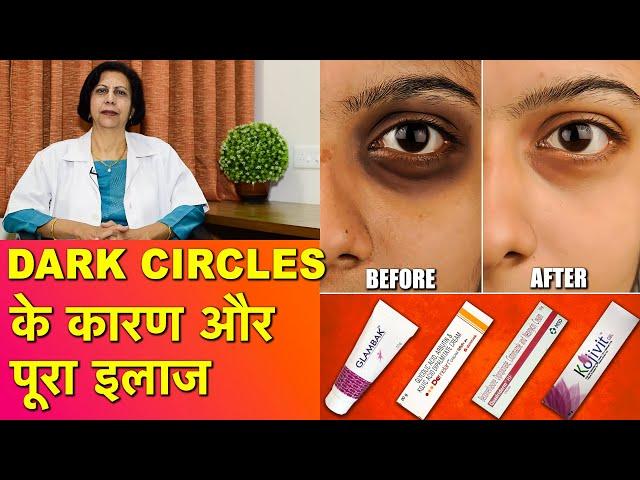 डार्क सर्कल / आँखों के काले घेरे के कारण और उनका ईलाज    Dark Circles Causes & Complete Treatment