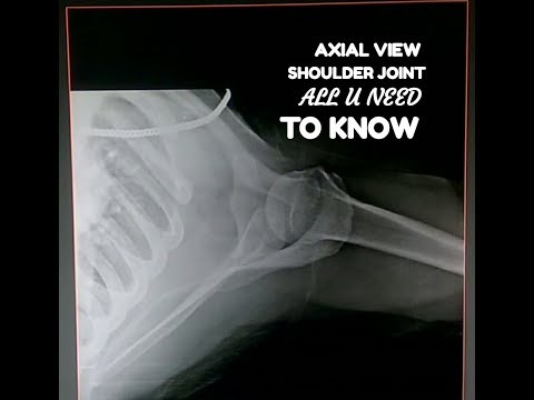 SHOULDER JOINT AXIAL VIEW, ANATOMY & PHYSIOLOGY PART- 103